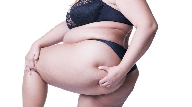 Body Positive: un movimiento de aceptación